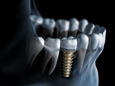 Implantologie - Implant dentar