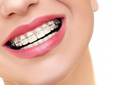 Ortodontie - Aparat dentar